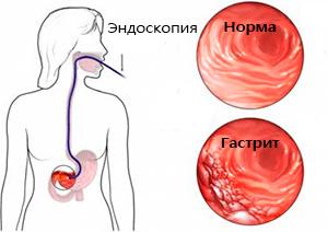 эндоскопия